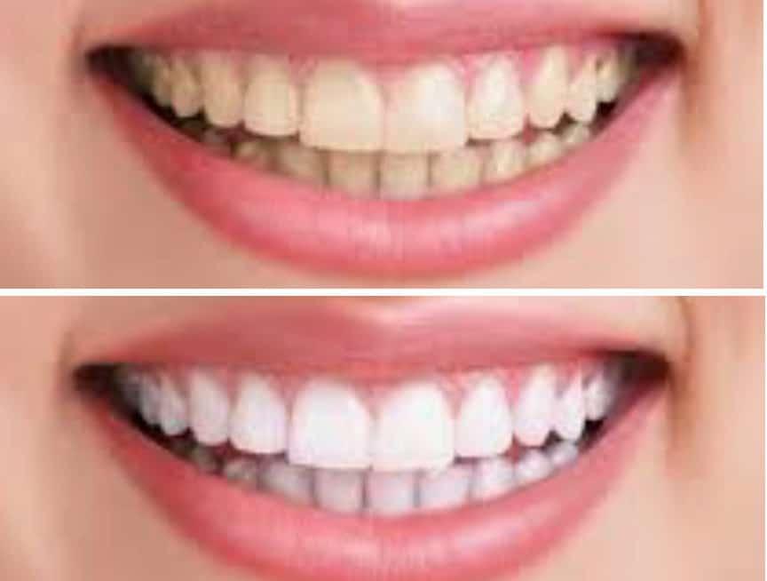 cropped teethwhitening 2